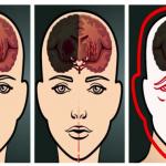 Valutazione e trattamento neuropsicologico dell'ictus