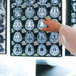 Cervello, nuova scoperta in ambito malattie degenerative.