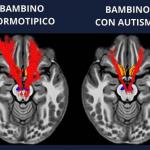 Autismo e deficit della ricompensa sociale